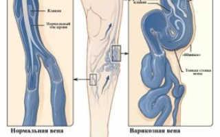 Варикозное расширение вен — симптомы, причины, лечение