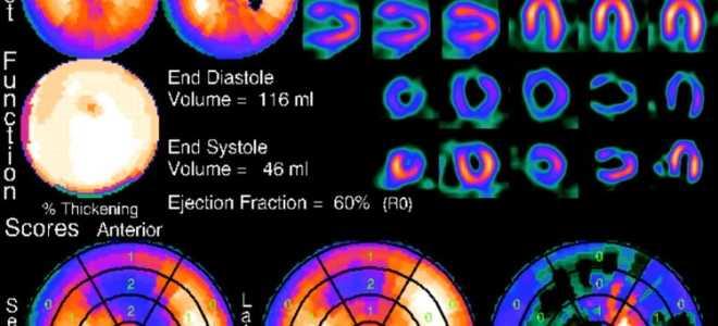 Диагностика инфаркта миокарда: методы постановки диагноза