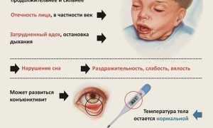 Коклюш у детей – симптомы, лечение, профилактика, признаки