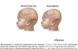 Микроцефалия у детей — лечение, виды, причины, симптомы