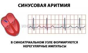 Синусовая аритмия: причины, симптомы, диагностика и лечение