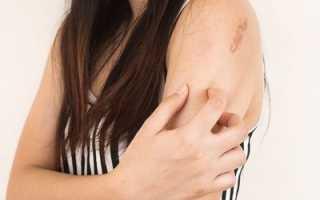 Микоз: симптомы, лечение, фото, причины