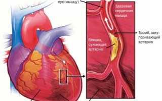 Инфаркт миокарда в анамнезе: общее представление о болезни