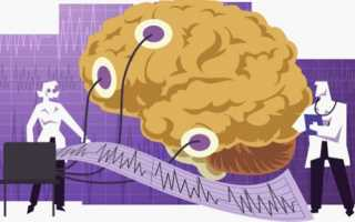 Электроэнцефалография головного мозга – методы