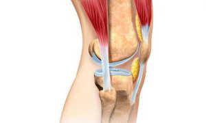 Деформирующий остеоартроз: симптомы, лечение, причины возникновения