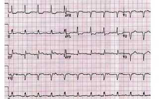 Экг при инфаркте миокарда: расшифровка результатов