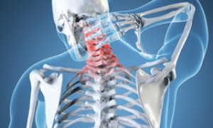 Шейная головная боль — лечение, профилактика