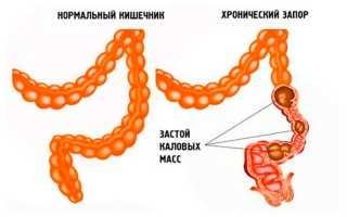 Хронический запор: симптомы и лечение, причины, препараты