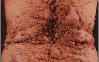 Нейрофиброматоз — причины, виды, симптомы, лечение, профилактика
