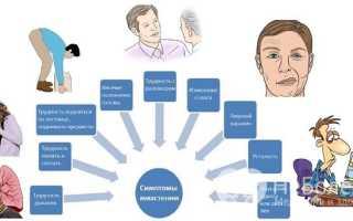 Миастения: симптомы, лечение, причины, формы