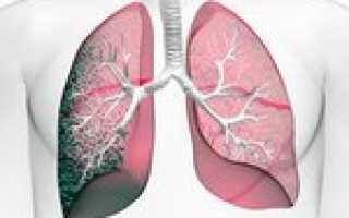 Пневмофиброз легких — лечение, симптомы, причины