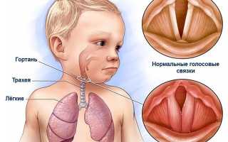 Ларингит у детей – симптомы, лечение, причины, острый ларингит у детей