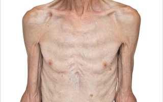 Кахексия — симптомы, причины, лечение